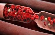 Как защитить сосуды от образования тромбов